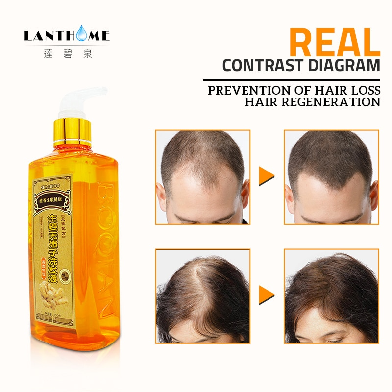[해외]/300ml Professional Hair Ginger Shampoo for Hair Growth Hair Regrowth Dense Fast Thicker Shampoo Anti Hair Loss Dandruff Product